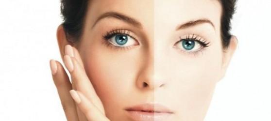 http://guidelineshealth.com/wp-content/uploads/2014/01/Get-A-Fair-Skin.jpg