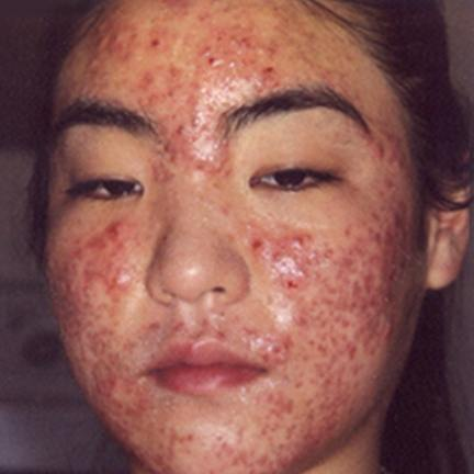 acne-scars-time-to-fade-caused-drug-use-acne-6f